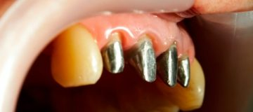Технология изготовления вкладки в зуб под коронку с фото