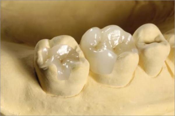 Вкладка в зуб под коронку из серебра