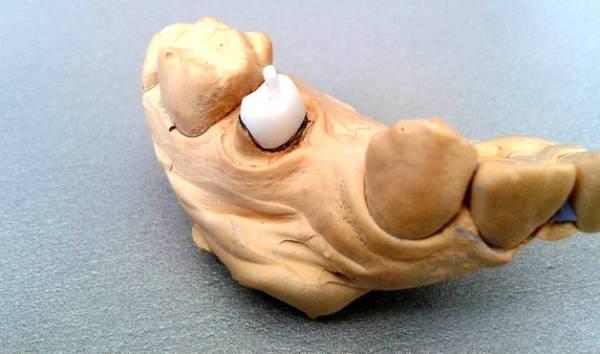 Вкладка в зуб под коронку срок службы и отзывы