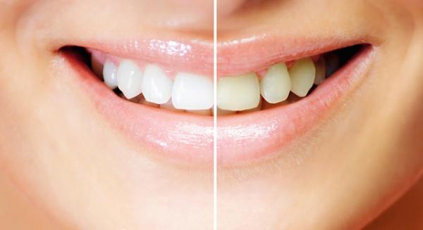 Зубная паста из тайланда отзывы