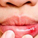 как следует лечить белые язвы во рту