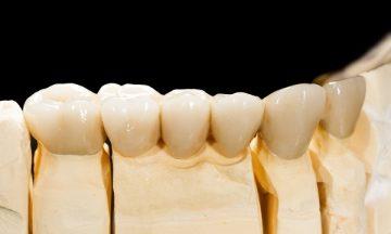 сколько стоит вставить передний и жевательный зуб из металлокерамики, от чего зависит цена