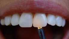 фото циркониевых коронок, установленных на передних зубах