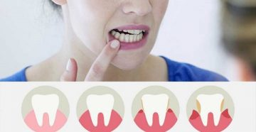 почему десна отошла от зуба, кровоточит и болит, как лечить