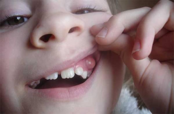 эпулис на десне у ребенка