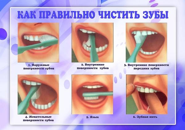 как нужно чистить зубы