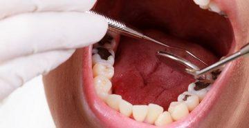 стадии кариеса зубов, их обзор и фото