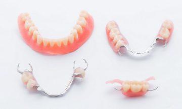 какие зубные протезы лучше и дешевле поставить