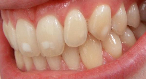 кариес на стадии пятна на молочных и коренных зубах