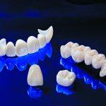 керамические коронки на зубы, их достоинства и недостатки