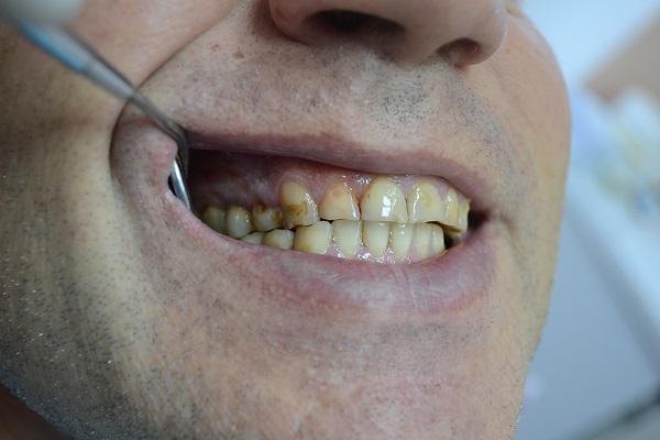 клиновидный дефект зубов показание для применения специального лака