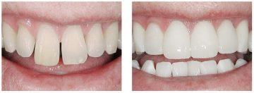 композитные виниры: что такое, фото до и после лечения