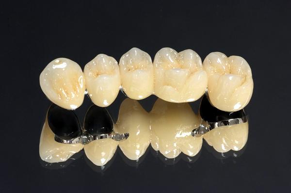 хромоникелевые коронки для зубов
