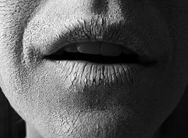 сухость полости рта