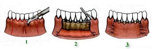 если десна как будто отходит от зуба, проведение операции