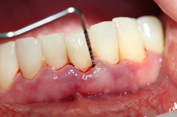 как проводится кюпераж закрытого типа между десной и зубом на нижней челюсти