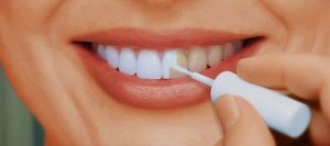 фторовый лак для отбеливания зубов