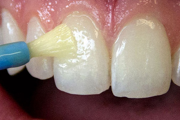 недостатки применения лака для зубов Флуор и других