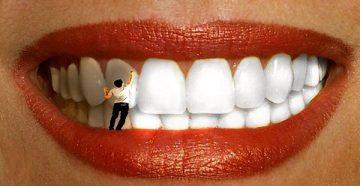 отбеливание фторирующим лаком для зубов