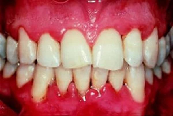 ожог слизистой полости рта
