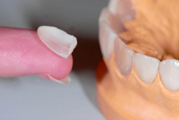 зубные пластины, их достоинства и недостатки