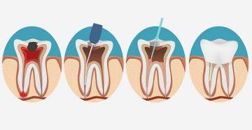 чистка каналов зуба, могут ли быть последствия