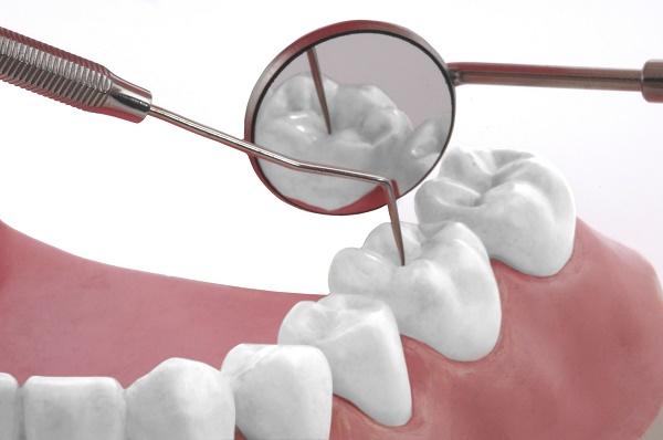 электрическая зубная щетка отличная профилактика заболеваний полости рта