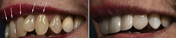 сколько стоит реставрация зубов винирами из композита