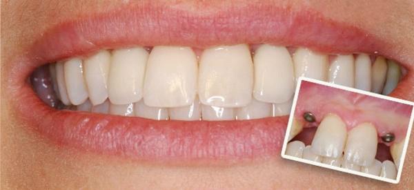 сколько времени прослужат зубные импланты
