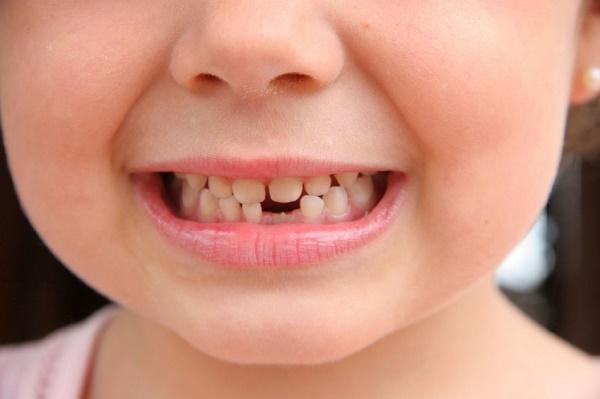 смена молочных зубов на коренные, порядок прорезывания