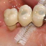 какой должен быть уход за зубными имплантами