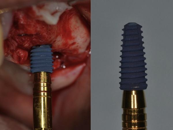 как вкручивают имплант в челюсть