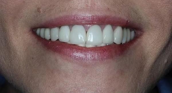 процесс востановления после имплантации зубов