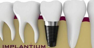 Отзывы стоматологов и пациентов об имплантах Implantium