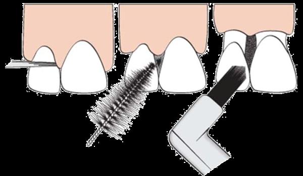 Как правильно ухаживать за зубами видео