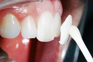 Люминиры – цена за 1 зуб и его установку