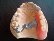 Цена одностороннего бюгельного протеза на верхнюю челюсть