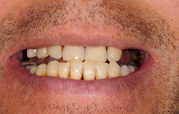 Зубной протез квадротти отзывы