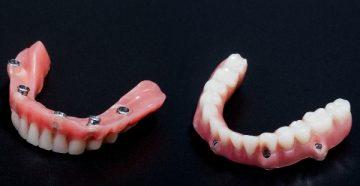 покрывные зубные протезы нового поколения