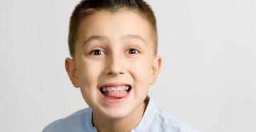 для чего в ортодонтии используется миогимнастика и как правильно выполняется