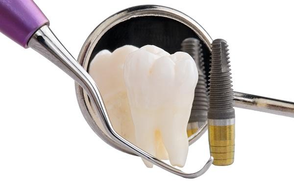 как часто нужно посещать стоматолога после процедуры миниимплантации