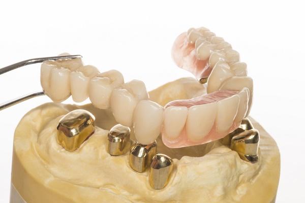 особенности установки покрывных протезов на зубы