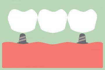 зубные мосты: обзор, виды, фото, стоимость