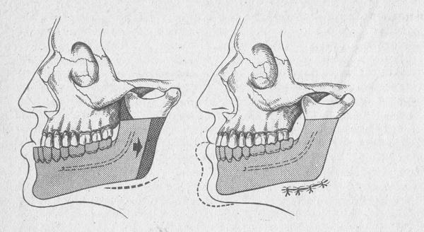 упражнения для мышц челюсти