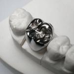 какие коронки подойдут на жевательные зубы