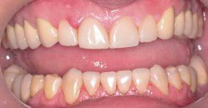 противопоказания к использования отбеливающего карандаша для зубов