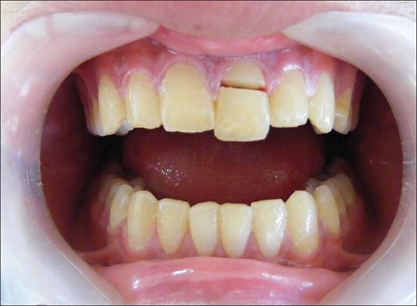 в каких случаях устанавливаются покрывные зубные протезы