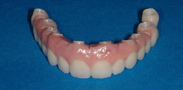 достоинства покрывных зубных протезов