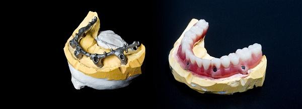 какова цена покрывного зубного протеза