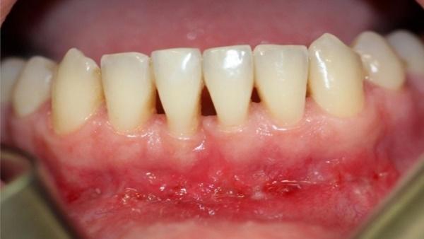 показания для вестибулопластики нижней челюсти